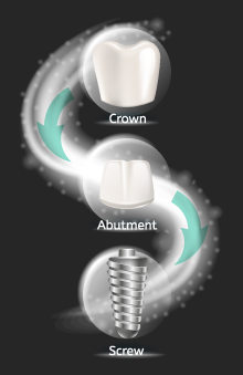 Only $1,699 for implant package that includes implant, abutment and porcelain crown.